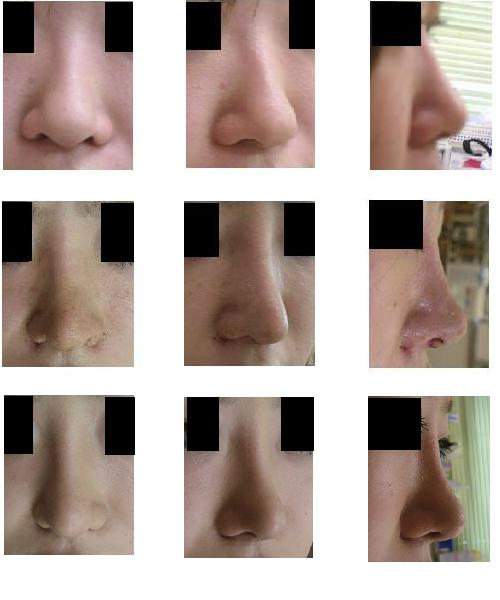 鼻尖縮小術、プロテーゼ隆鼻術、小鼻縮小術、耳軟骨移植_d0092965_2282615.jpg