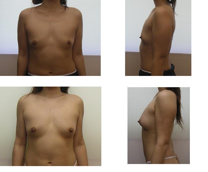 脂肪移植豊胸_d0092965_234069.jpg
