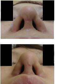 小鼻肉厚減幅術(こばなにくあつげんふくじゅつ)_d0092965_2511458.jpg