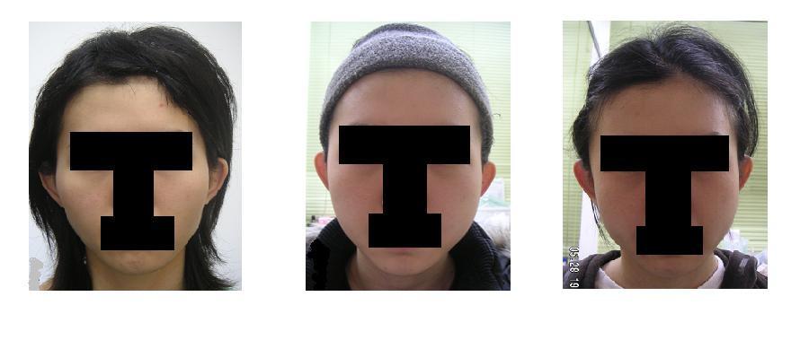 頬骨(きょうこつ)アーチリダクション=頬骨弓リダクション≒頬骨削り(切り)_d0092965_39644.jpg