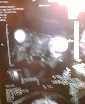 なつおさんの MRI画像♪_f0096569_856854.jpg
