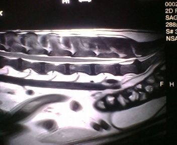 なつおさんの MRI画像♪_f0096569_94160.jpg