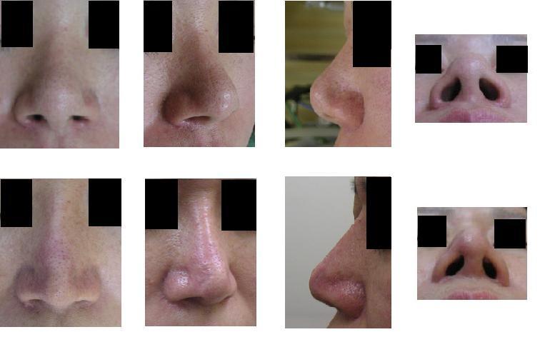 鼻尖縮小術、鼻中隔壁延長術、小鼻縮小術、プロテーゼ隆鼻術_d0092965_23234430.jpg