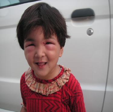 蜂に刺された姪っ子_f0112655_3413098.jpg