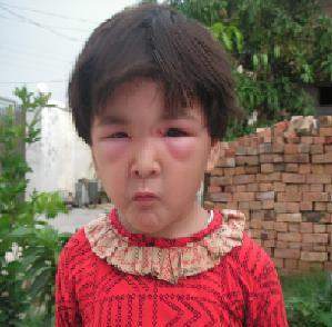 蜂に刺された姪っ子_f0112655_342783.jpg