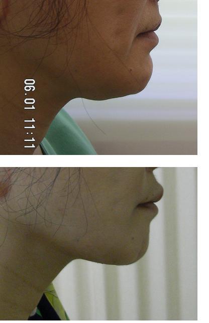顎下液体シリコン注入後肉芽腫除去手術_d0092965_0503183.jpg