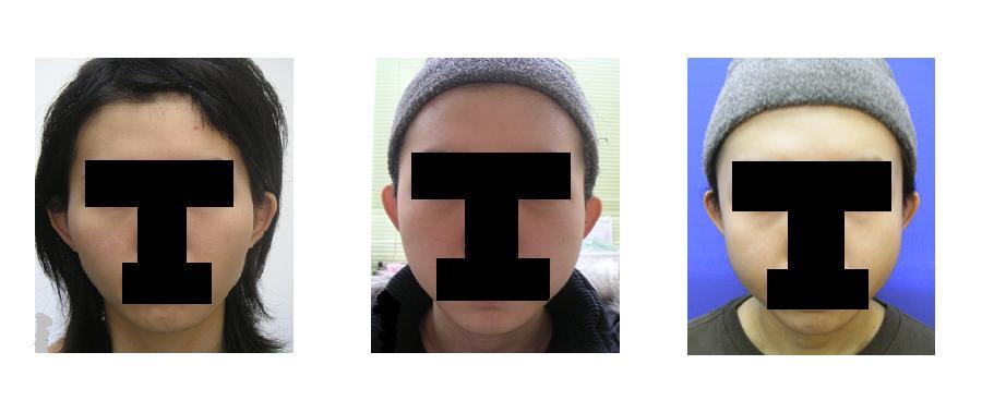 頬骨(きょうこつ)アーチリダクション=頬骨弓リダクション≒頬骨削り(切り)_d0092965_0101888.jpg