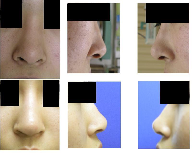 鼻孔縁下降術_d0092965_2316745.jpg