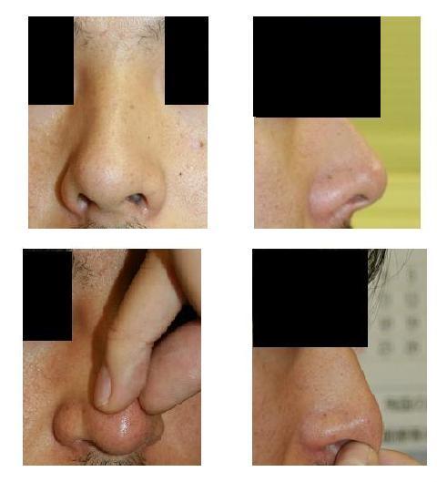 鼻中隔延長術(クローズ法)、鼻尖縮小術_d0092965_0335136.jpg