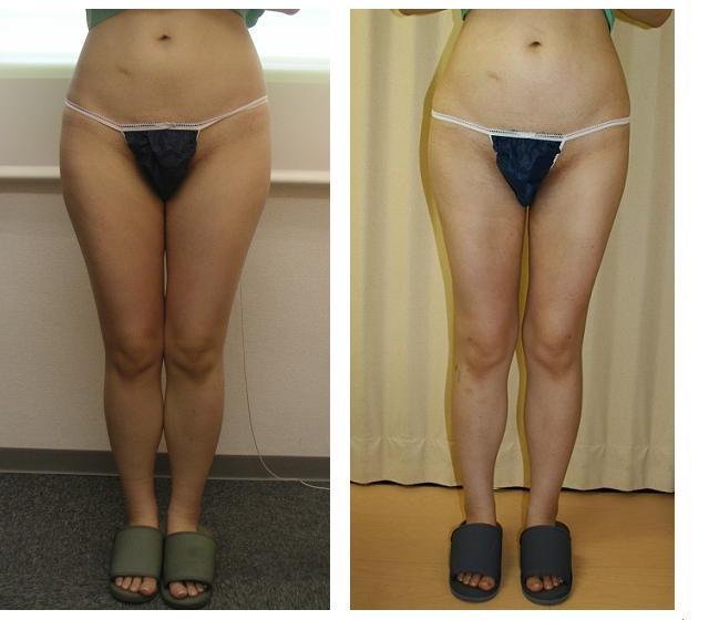 女の盲腸の傷跡  2針目YouTube動画>13本 ->画像>375枚