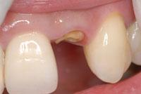 標準的治療 ファイバーコアと仮歯(Tek,テンポラリークラウン)_e0004468_2322440.jpg