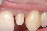 標準的治療 ファイバーコアと仮歯(Tek,テンポラリークラウン)_e0004468_2324728.jpg