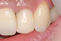 標準的治療 ファイバーコアと仮歯(Tek,テンポラリークラウン)_e0004468_233844.jpg