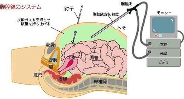腹腔鏡下手術_f0048234_214436.jpg