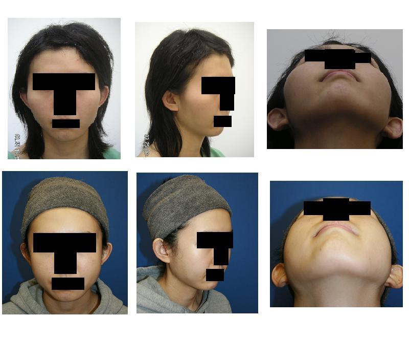 頬骨(きょうこつ)アーチリダクション=頬骨弓リダクション≒頬骨削り(切り)_d0092965_213637100.jpg