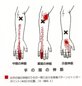 しびれ 右手 頚椎症性神経根症の原因と治療-片腕のしびれや痛み、肩こりが現れる