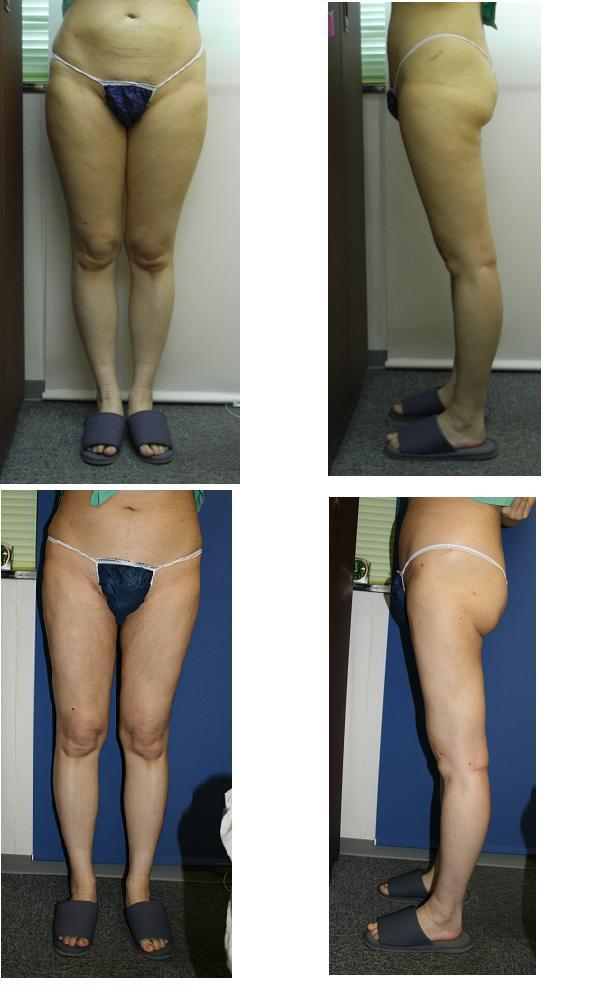 大腿全周脂肪吸引_d0092965_2310146.jpg