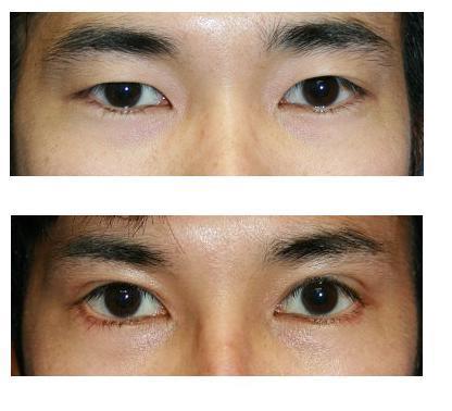 眼瞼挙筋(がんけんきょきん)短縮術、たれ目形成術_d0092965_23571658.jpg