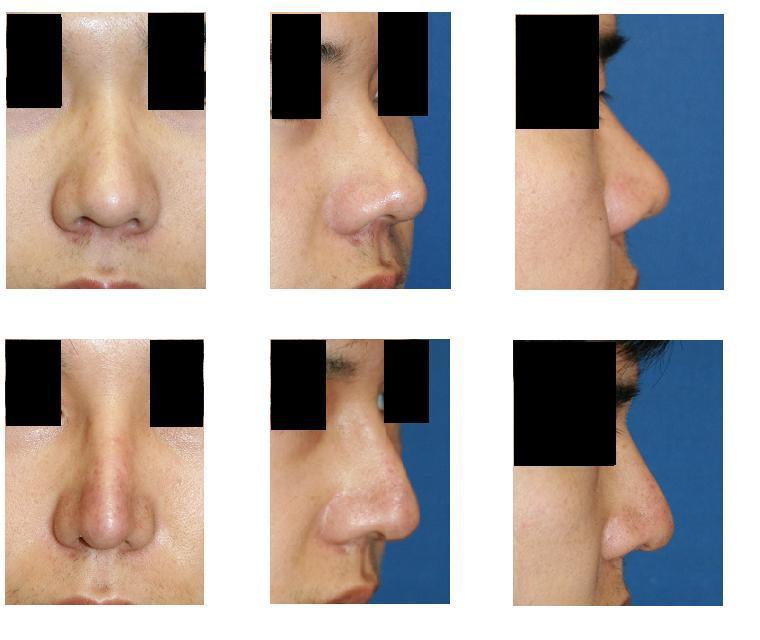 自己組織隆鼻術、鼻尖縮小形成術_d0092965_2022384.jpg