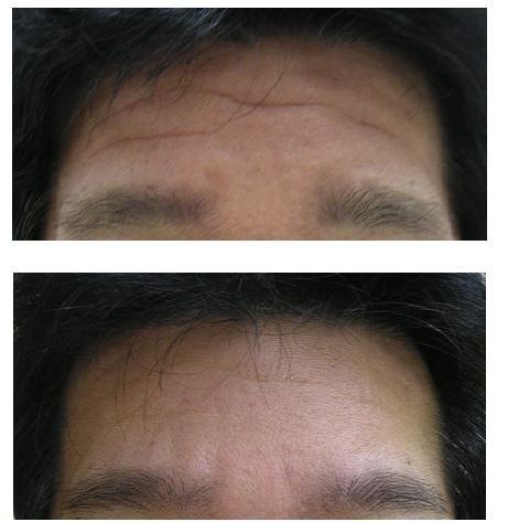 皺とりボトックス_d0092965_2029344.jpg