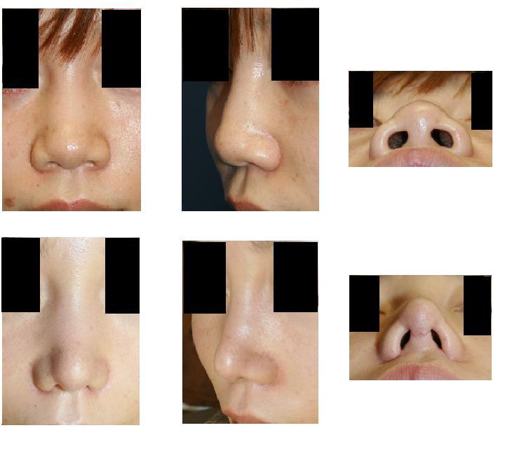 鼻尖縮小術(オープン法)、小鼻縮小術_d0092965_1405968.jpg
