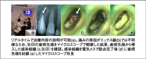マイクロスコープは虫歯から審美歯科まで革新的変化をもたらした。標準的治療を行う歯医者には必須であろう_e0004468_553218.jpg