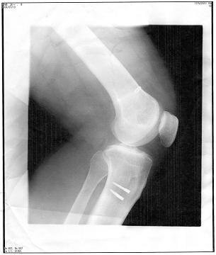 膝の手術から4年_b0074601_22451410.jpg