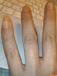 指のその後3_a0016346_18582.jpg