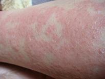 蕁麻疹・経過報告_f0000925_19283394.jpg