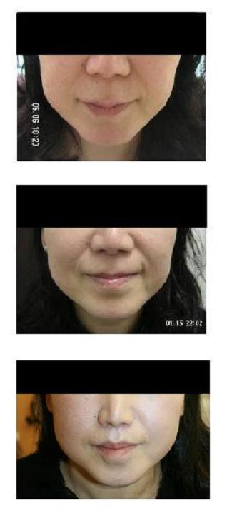 小鼻縮小術、人中短縮術_d0092965_23421547.jpg