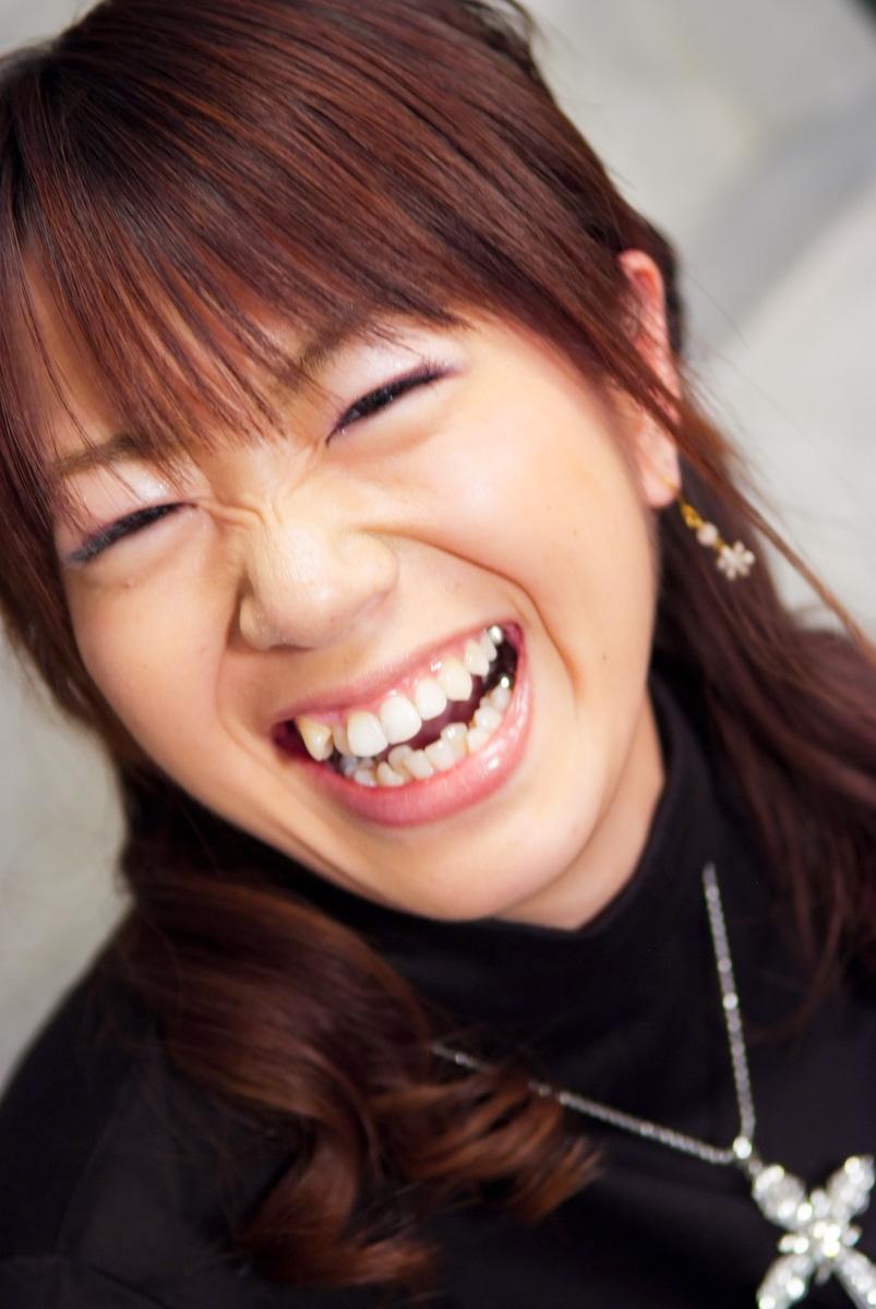 ■女性の金属歯フェチ■銀歯・金歯・差し歯に萌えYouTube動画>10本 ->画像>215枚