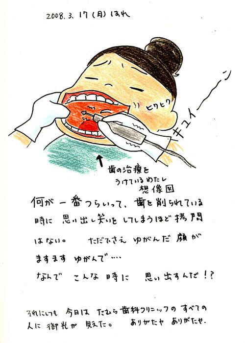 3/17 歯の神様_f0072976_21414127.jpg