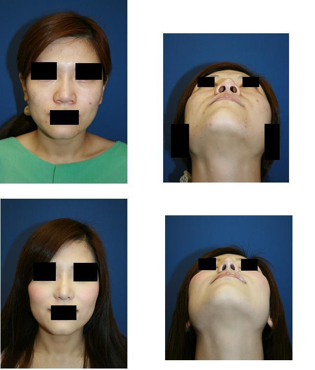 鼻尖縮小術、小鼻縮小術_d0092965_20242041.jpg