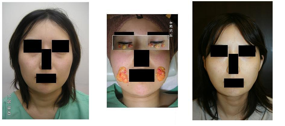 下瞼脂肪取り、バッカルファット摘出術_d0092965_22415291.jpg