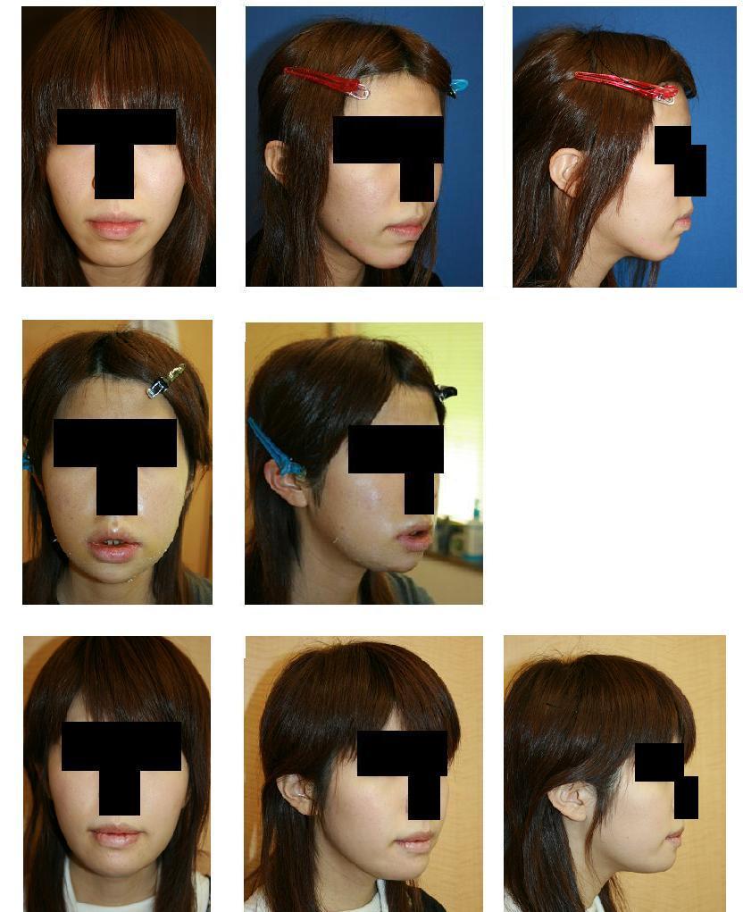 顎骨骨切り術_d0092965_20551028.jpg