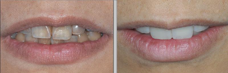 いま、先進的な標準的審美的な歯科治療。笑顔がキレイになりました。東京の歯科医院。_e0004468_18295277.jpg