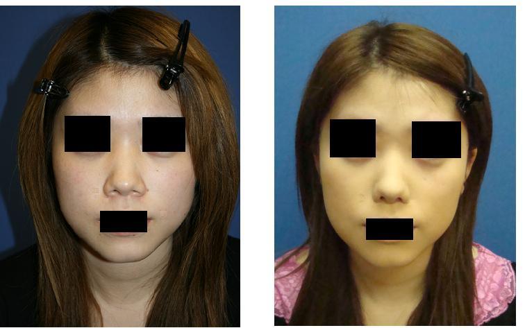 小鼻縮小術、鼻口唇角形成術_d0092965_16221086.jpg
