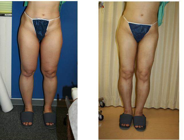 太もも全週脂肪吸引、ふくらはぎ脂肪吸引_d0092965_16592987.jpg