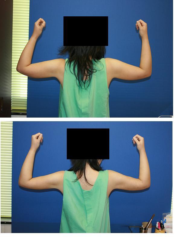 二の腕脂肪吸引_d0092965_234728100.jpg