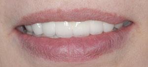 インプラント治療を回避。審美的な歯科治療、歯周病治療、根管治療、困難なトータル的治療。東京の歯科医院_e0004468_190425.jpg