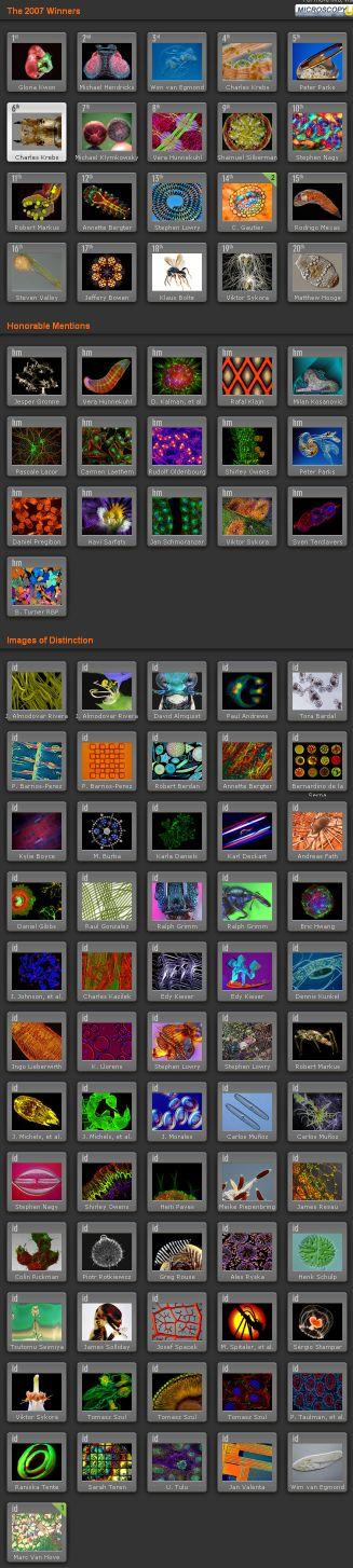 ニコン顕微鏡写真コンテスト_c0025115_19555489.jpg