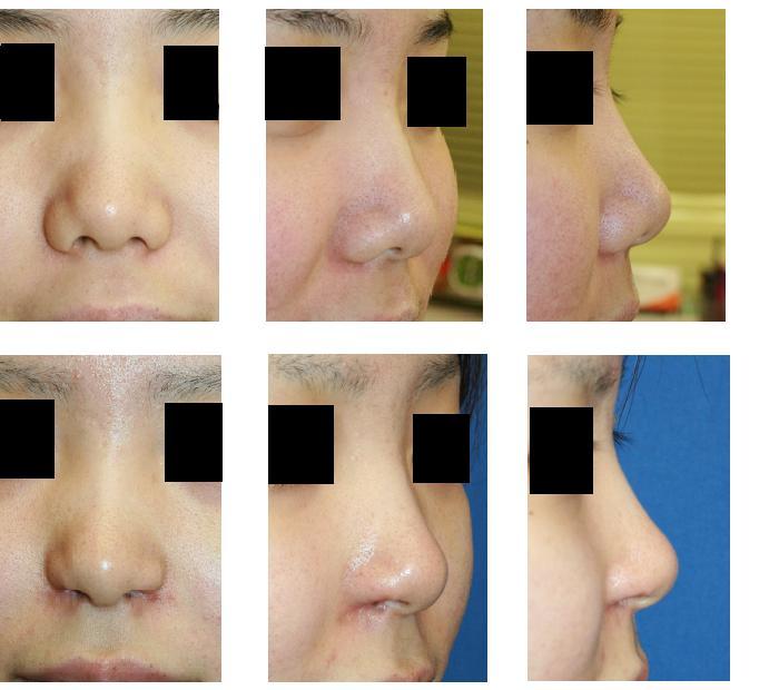 鼻孔縁挙上術、小鼻肉厚減幅術_d0092965_0302490.jpg