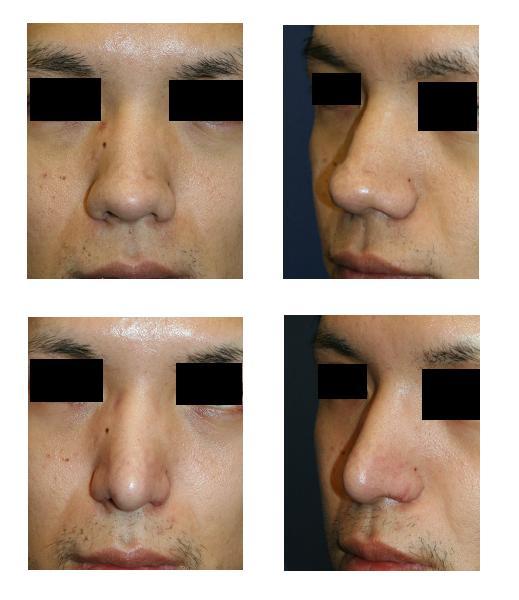 鼻尖縮小術(クローズ法)、鼻柱下降術、小鼻肉厚減幅術_d0092965_17185153.jpg