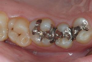 歴史と信頼性の高いゴールドインレー(金合金鋳造歯冠修復)を考える。マジックマージン。東京職人歯医者。_e0004468_19204596.jpg