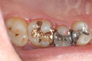 歴史と信頼性の高いゴールドインレー(金合金鋳造歯冠修復)を考える。マジックマージン。東京職人歯医者。_e0004468_19234671.jpg
