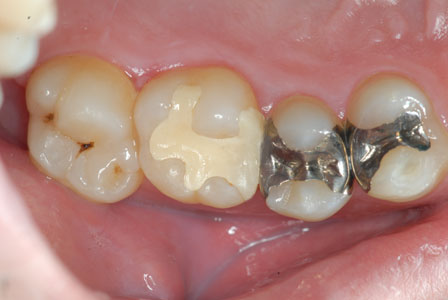 歴史と信頼性の高いゴールドインレー(金合金鋳造歯冠修復)を考える。マジックマージン。東京職人歯医者。_e0004468_19262646.jpg
