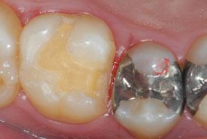 歴史と信頼性の高いゴールドインレー(金合金鋳造歯冠修復)を考える。マジックマージン。東京職人歯医者。_e0004468_19304852.jpg