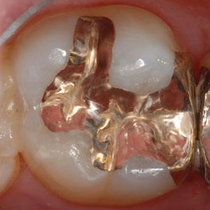 歴史と信頼性の高いゴールドインレー(金合金鋳造歯冠修復)を考える。マジックマージン。東京職人歯医者。_e0004468_19525288.jpg