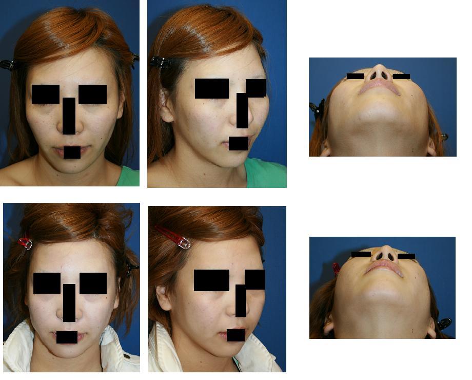 頬骨再構築法ではない頬骨弓リダクション_d0092965_0211466.jpg