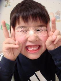 コラム・第7回 / Dr.小竹 憲雄 [二期会歯科クリニック] _c0130091_11121633.jpg